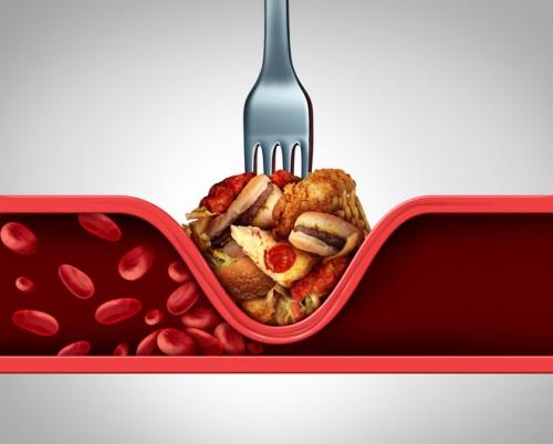 """""""三高""""人群吃什么食物好?常吃这种食物有助于改善""""三高""""症!"""